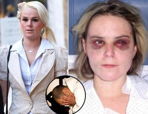 Another White Victim of black rape and attempted murder.